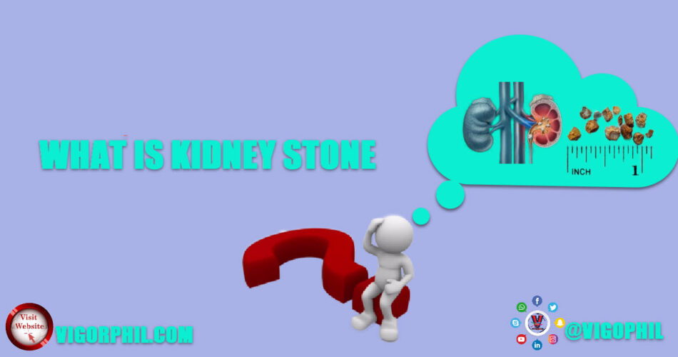 What Is Kidney Stone